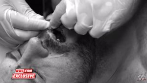 Cesaro Gets Stitches Before Dental Surgery (Graphic Video)